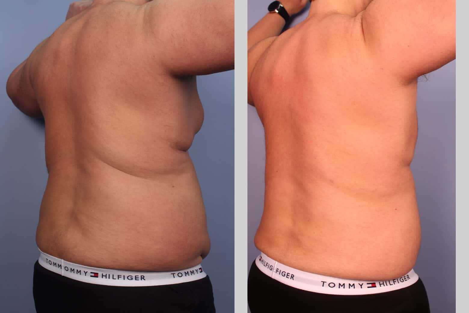 Male Tummy Tuck (Belt Lipectomy) - Before and After Gallery – Photo 24