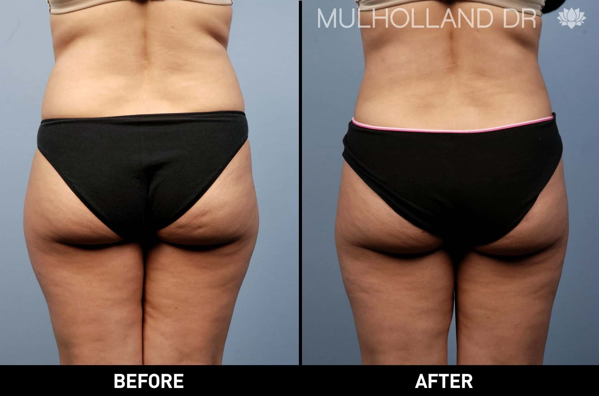 Tumescent Liposuction - Before and After Gallery – Photo 16