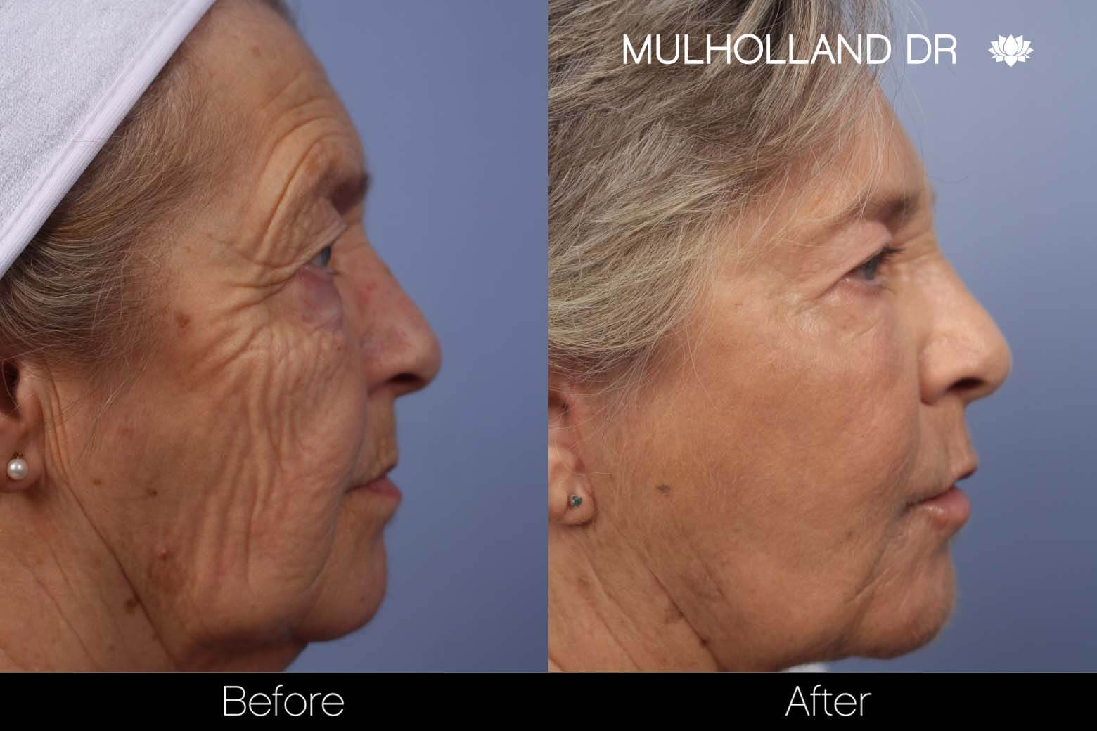 Facial Fat Transfer - Before and After Gallery – Photo 15