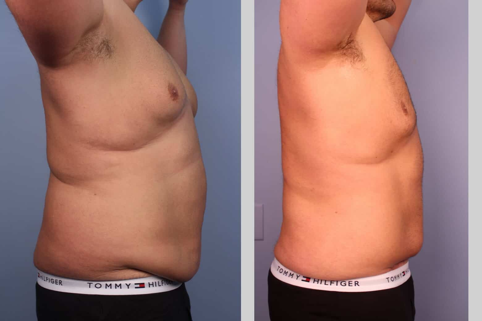 Male Tummy Tuck (Belt Lipectomy) - Before and After Gallery – Photo 25