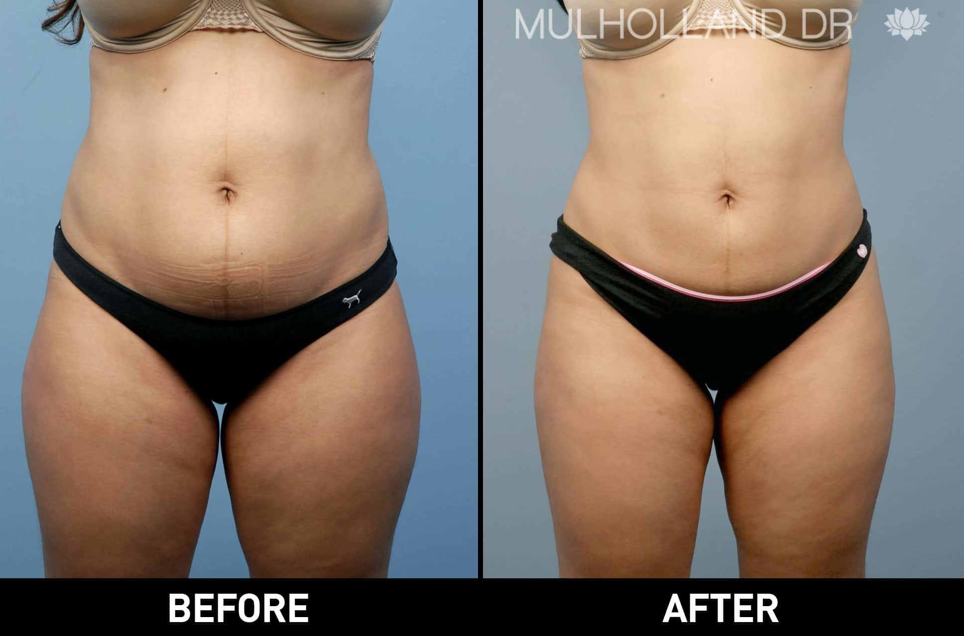 Tumescent Liposuction - Before and After Gallery – Photo 17