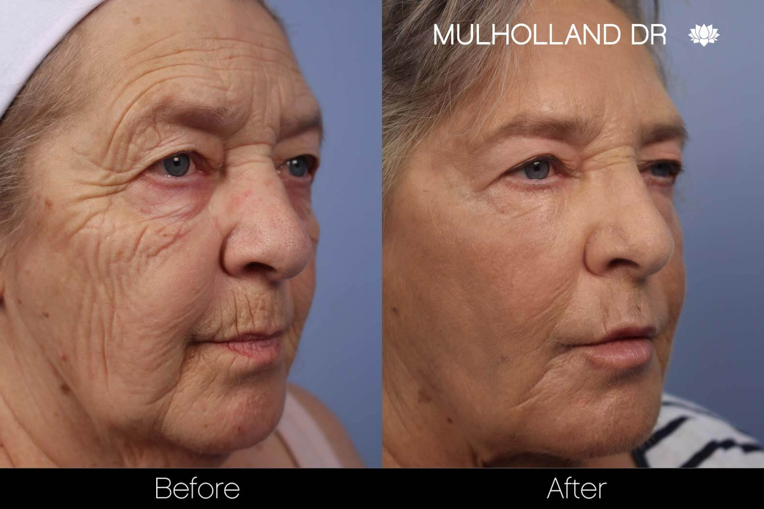 Facial Fat Transfer - Before and After Gallery – Photo 16
