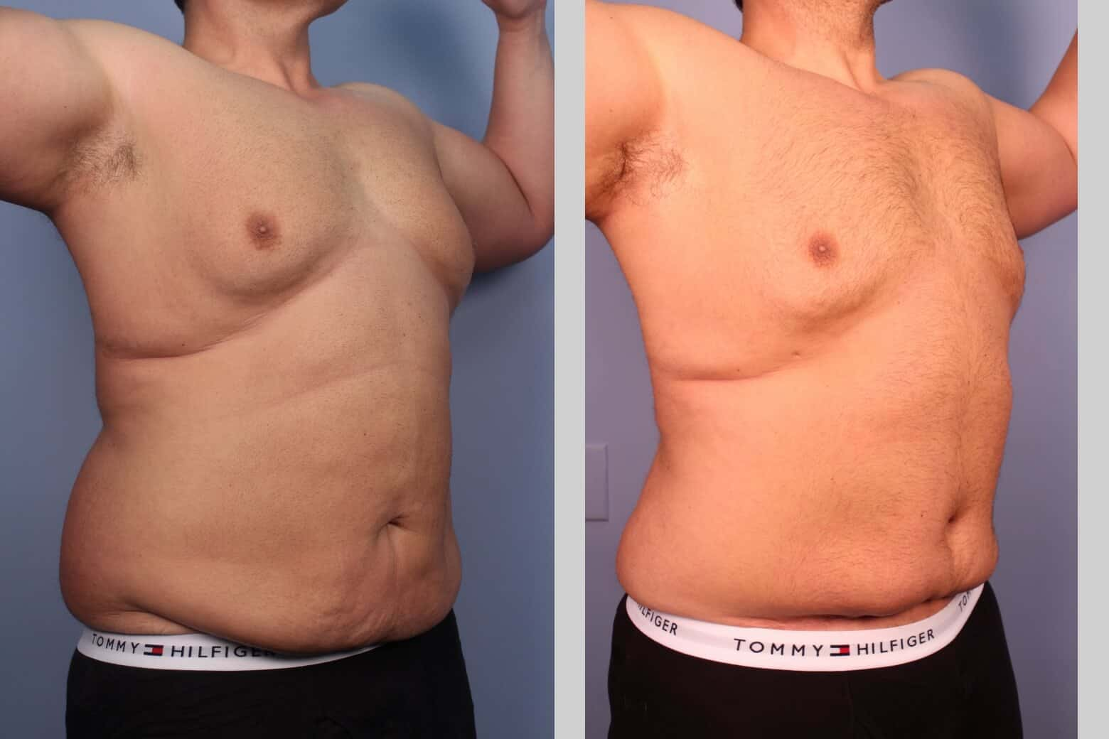 Male Tummy Tuck (Belt Lipectomy) - Before and After Gallery – Photo 26