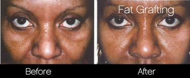 Facial Fat Transfer - Before and After Gallery – Photo 17
