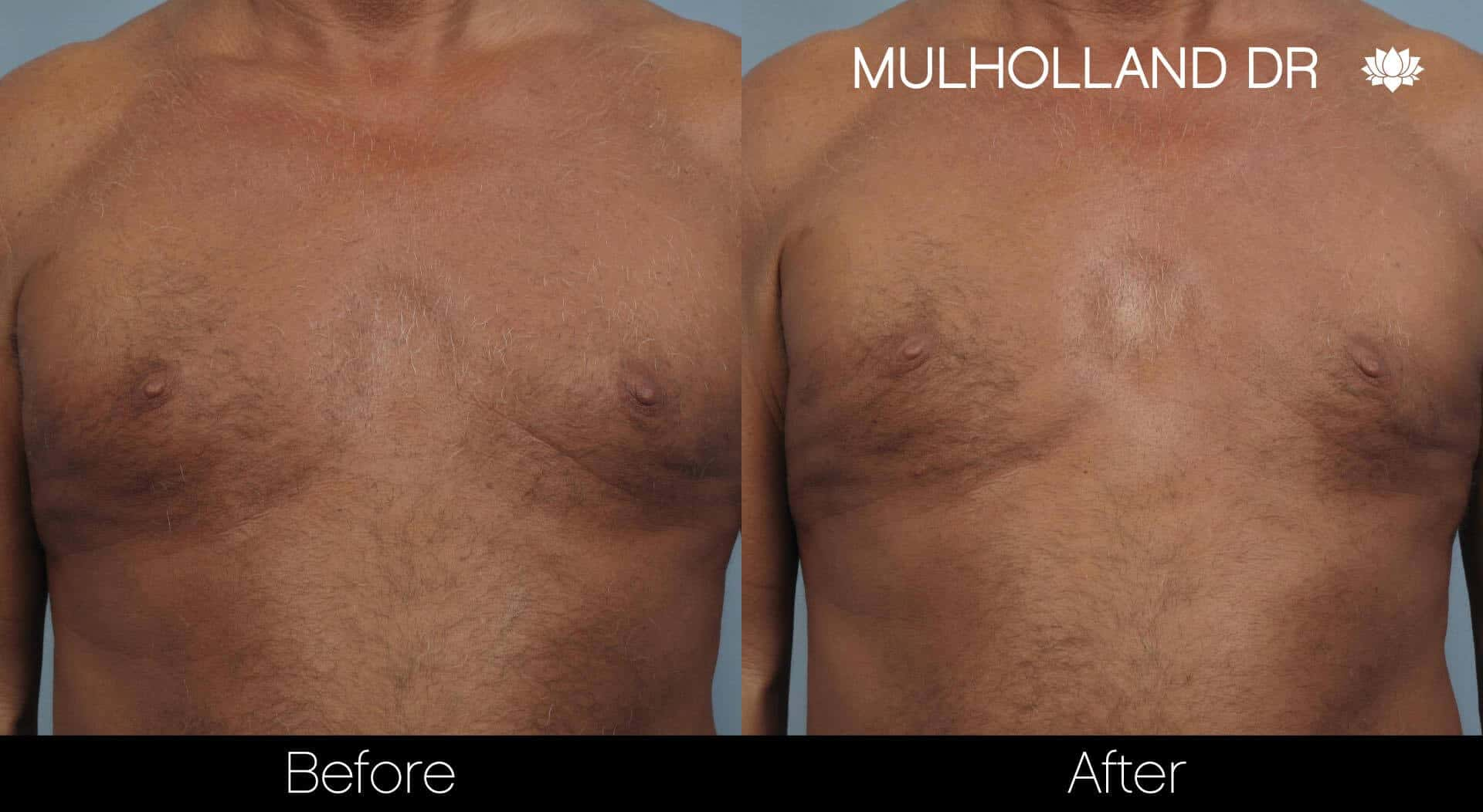 Gynecomastia Surgery (Male Breast Reduction) - Before and After Gallery – Photo 17