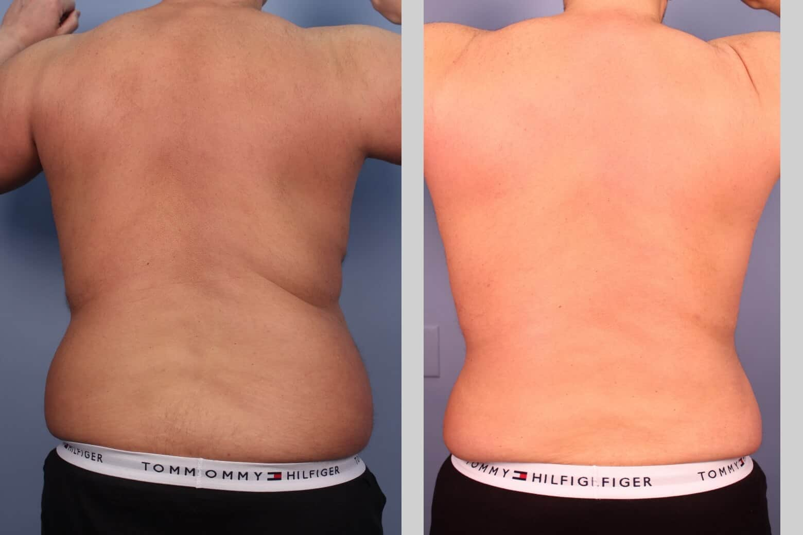 Male Tummy Tuck (Belt Lipectomy) - Before and After Gallery – Photo 27