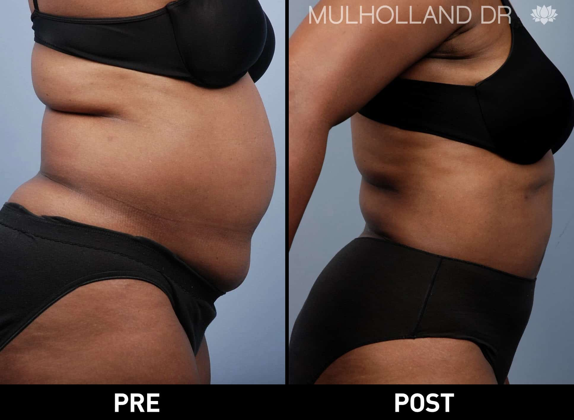 Tumescent Liposuction - Before and After Gallery – Photo 19