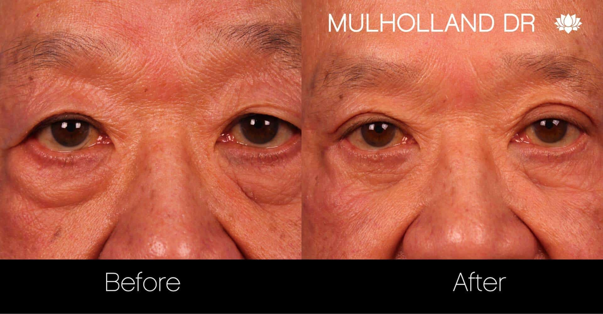 Asian Blepharoplasty - Before and After Gallery – Photo 18