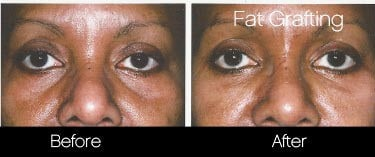 Facial Fat Transfer - Before and After Gallery – Photo 18