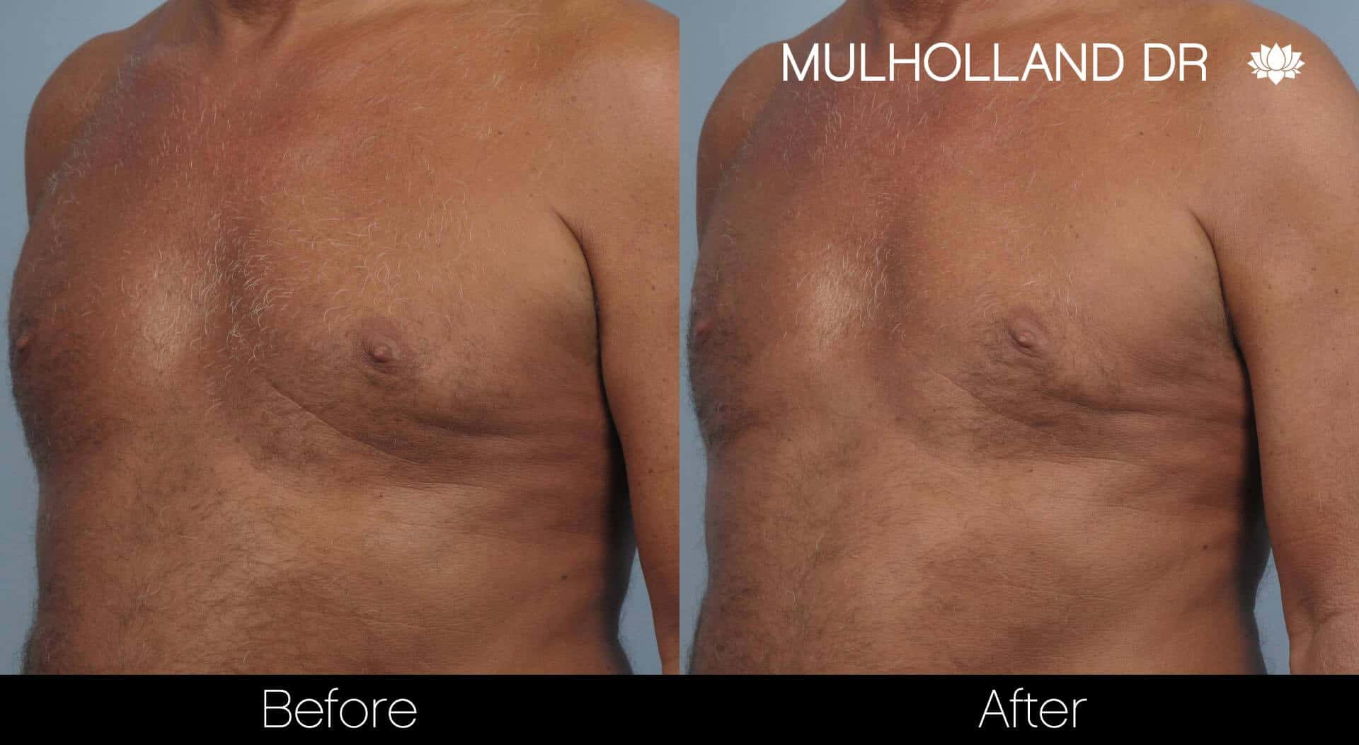 Gynecomastia Surgery (Male Breast Reduction) - Before and After Gallery – Photo 18
