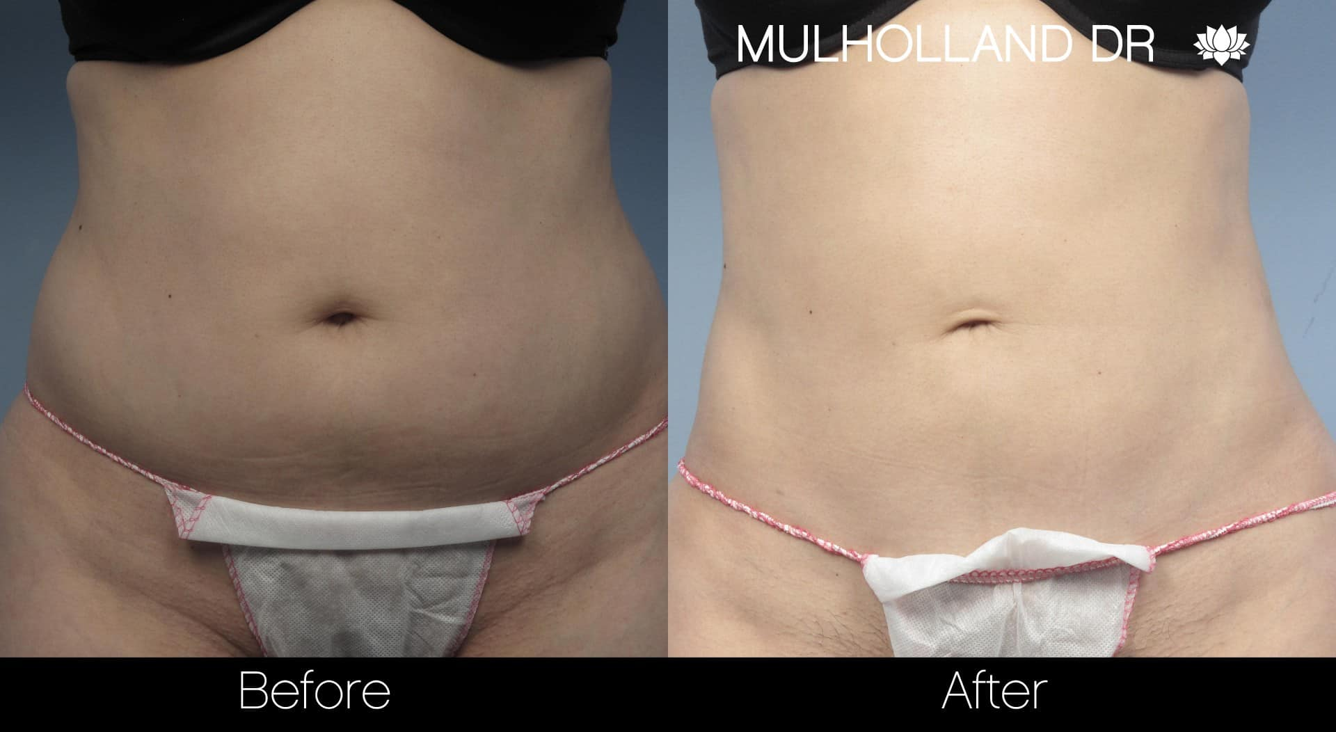 Tumescent Liposuction - Before and After Gallery – Photo 20