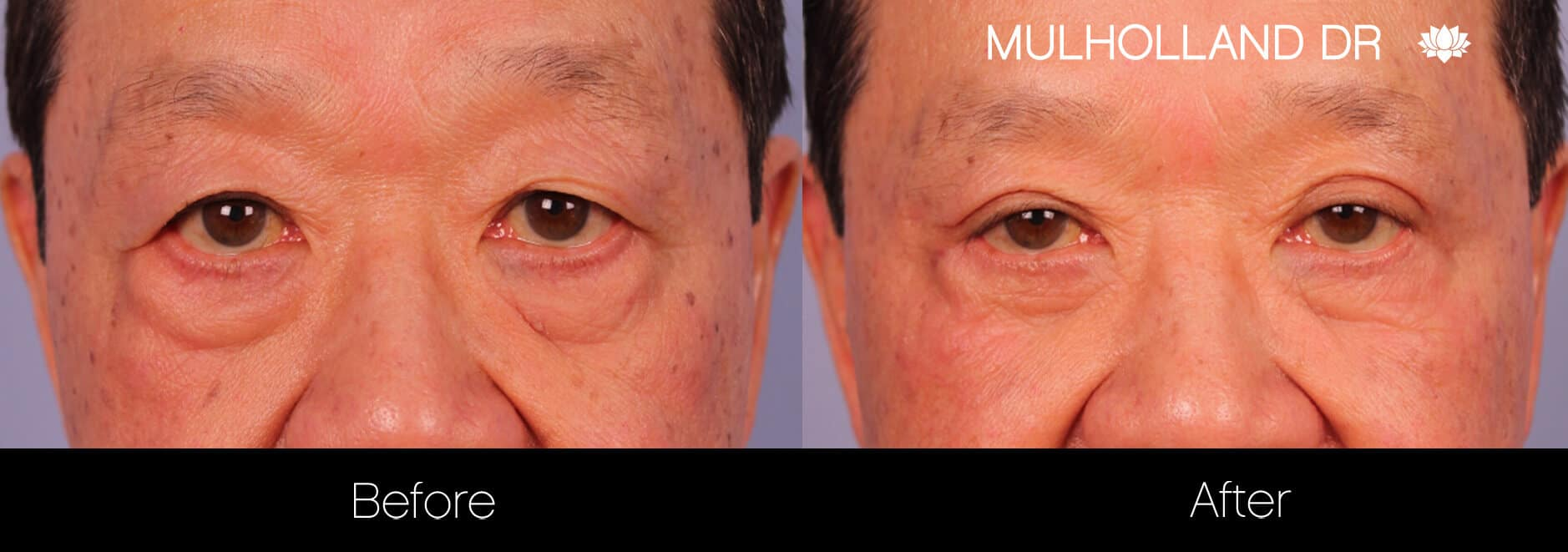 Asian Blepharoplasty - Before and After Gallery – Photo 19
