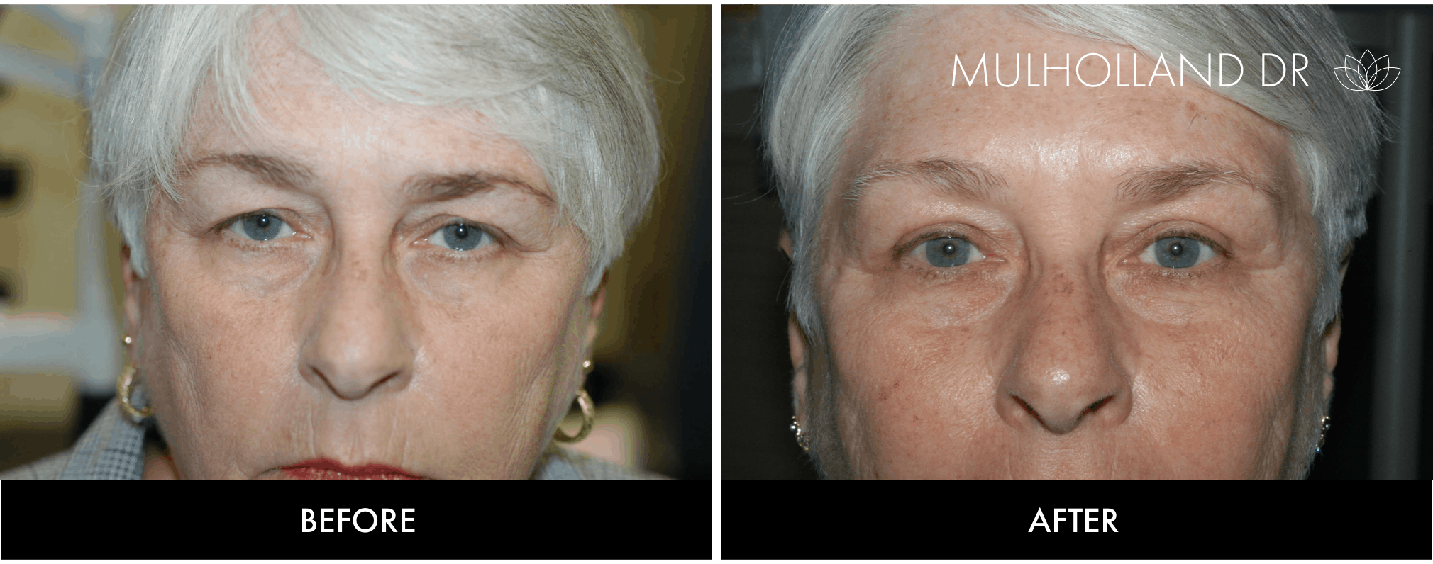 Brow Lift - Before and After Gallery – Photo 19