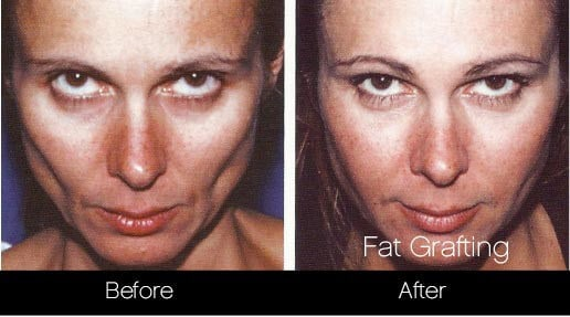Facial Fat Transfer - Before and After Gallery – Photo 19