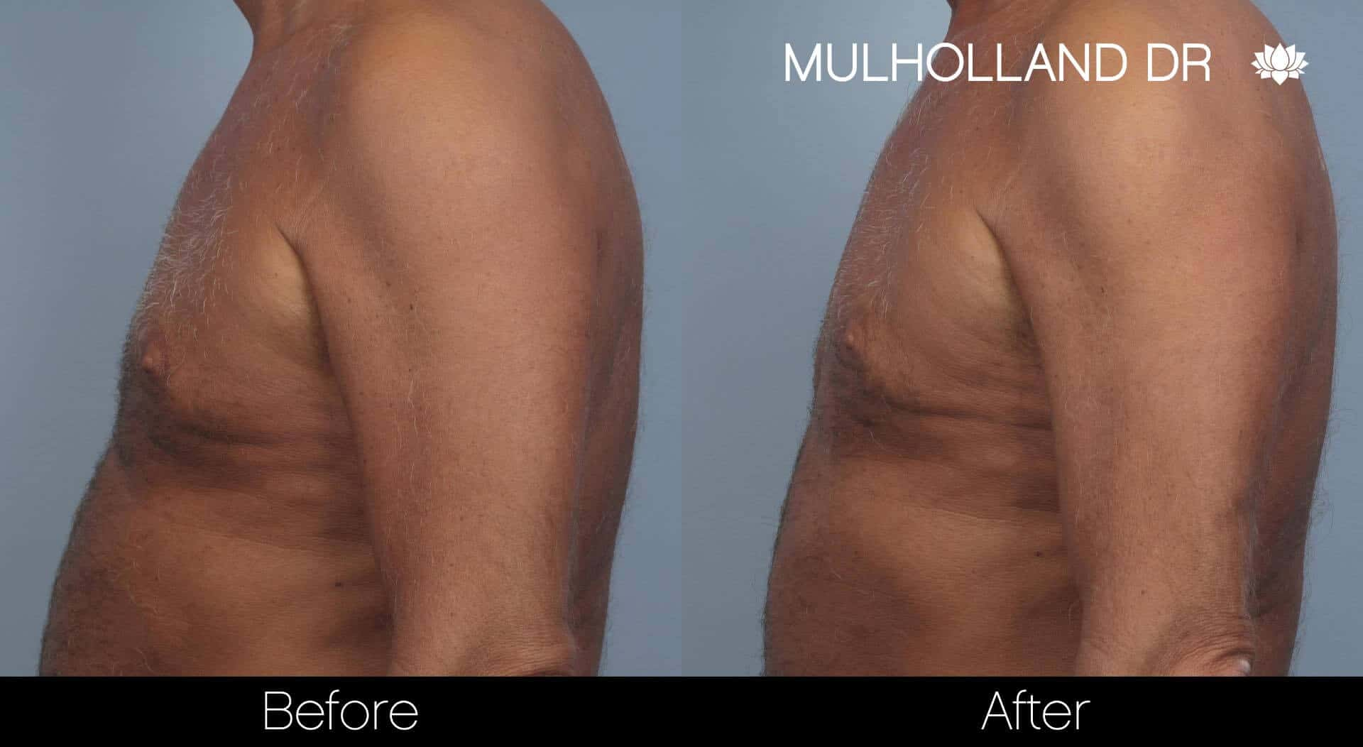 Gynecomastia Surgery (Male Breast Reduction) - Before and After Gallery – Photo 19