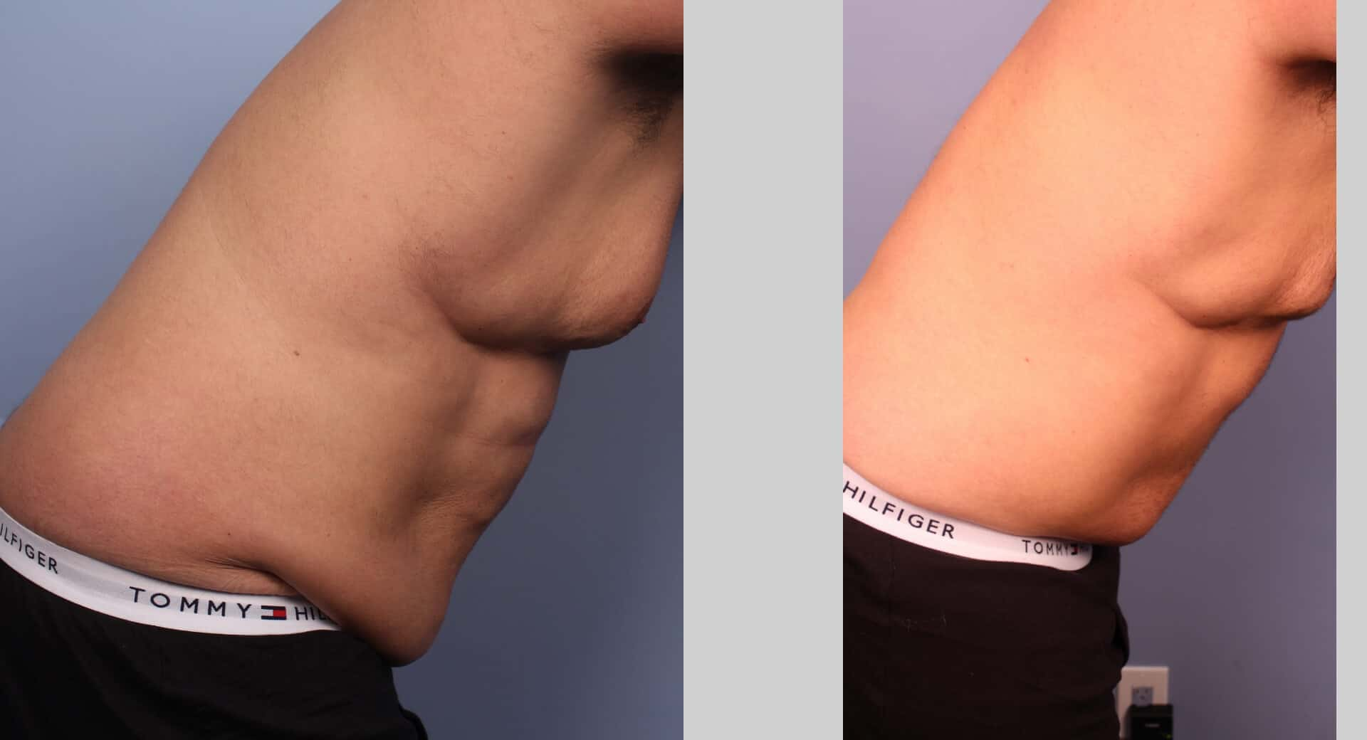 Male Tummy Tuck (Belt Lipectomy) - Before and After Gallery – Photo 29