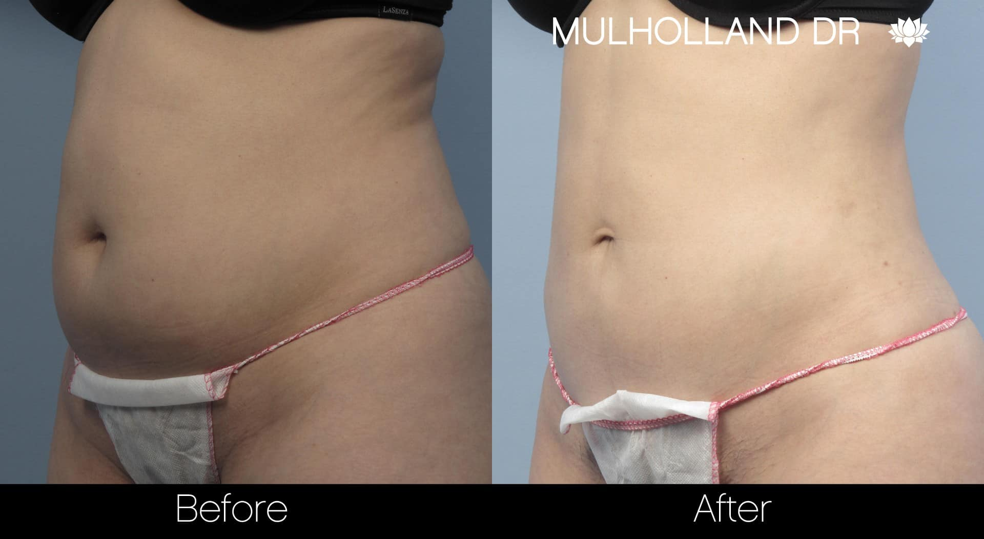Tumescent Liposuction - Before and After Gallery – Photo 21