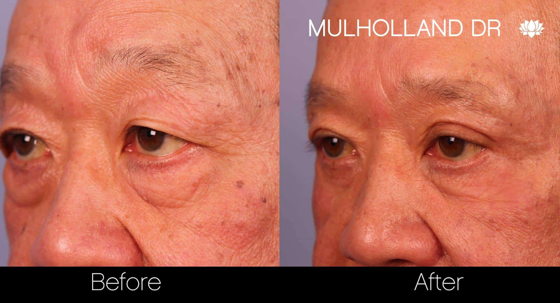 Asian Blepharoplasty - Before and After Gallery – Photo 20