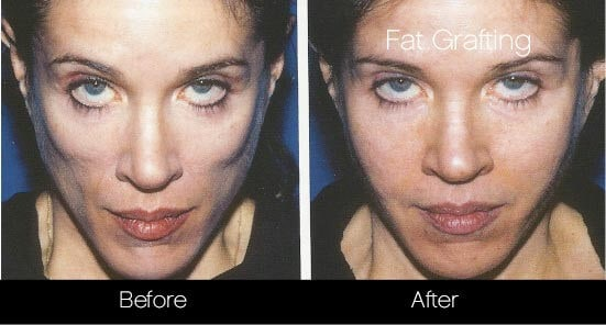 Facial Fat Transfer - Before and After Gallery – Photo 20