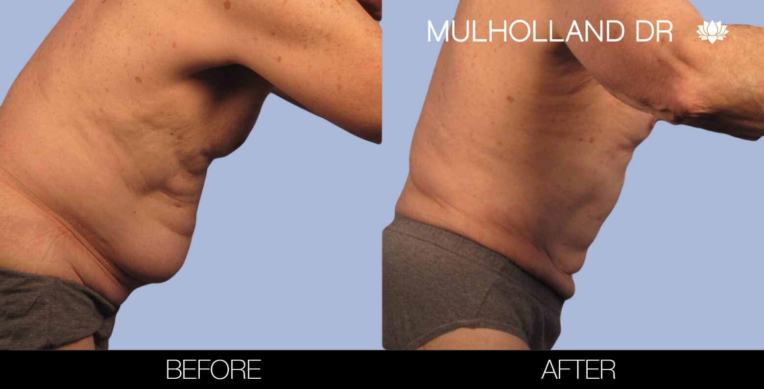 Male Tummy Tuck (Belt Lipectomy) - Before and After Gallery – Photo 30