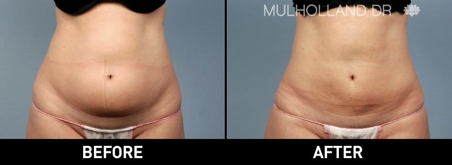 Tumescent Liposuction - Before and After Gallery – Photo 22