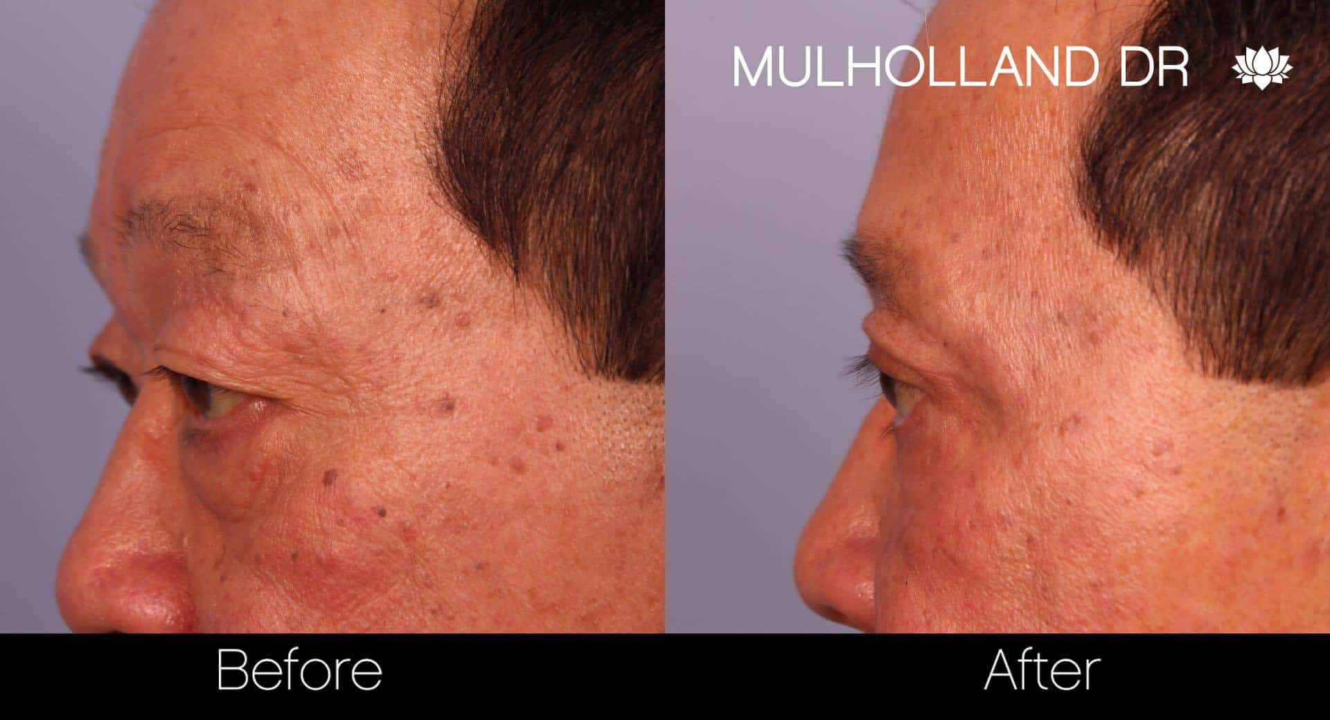 Asian Blepharoplasty - Before and After Gallery – Photo 21