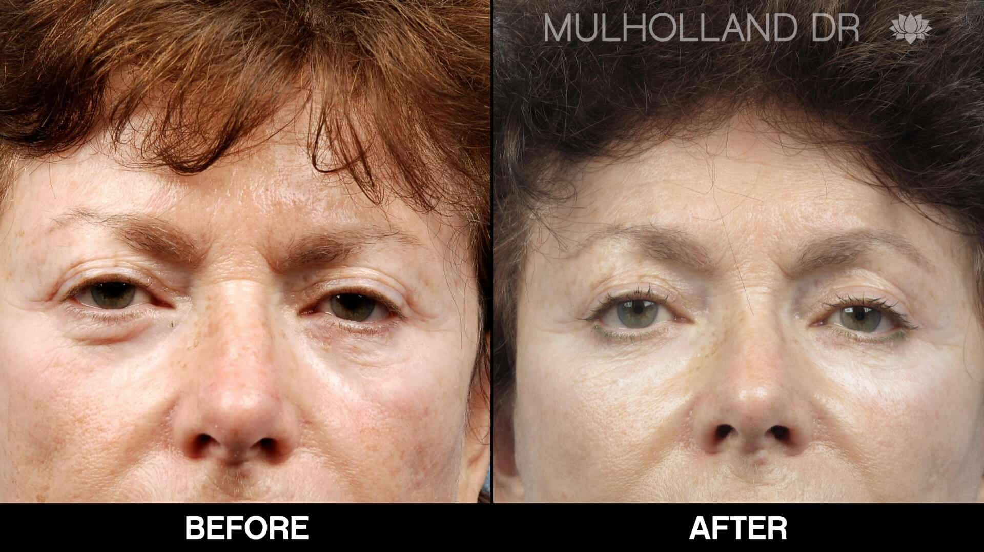 Brow Lift - Before and After Gallery – Photo 20
