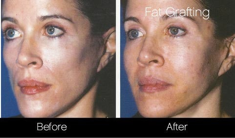 Facial Fat Transfer - Before and After Gallery – Photo 21