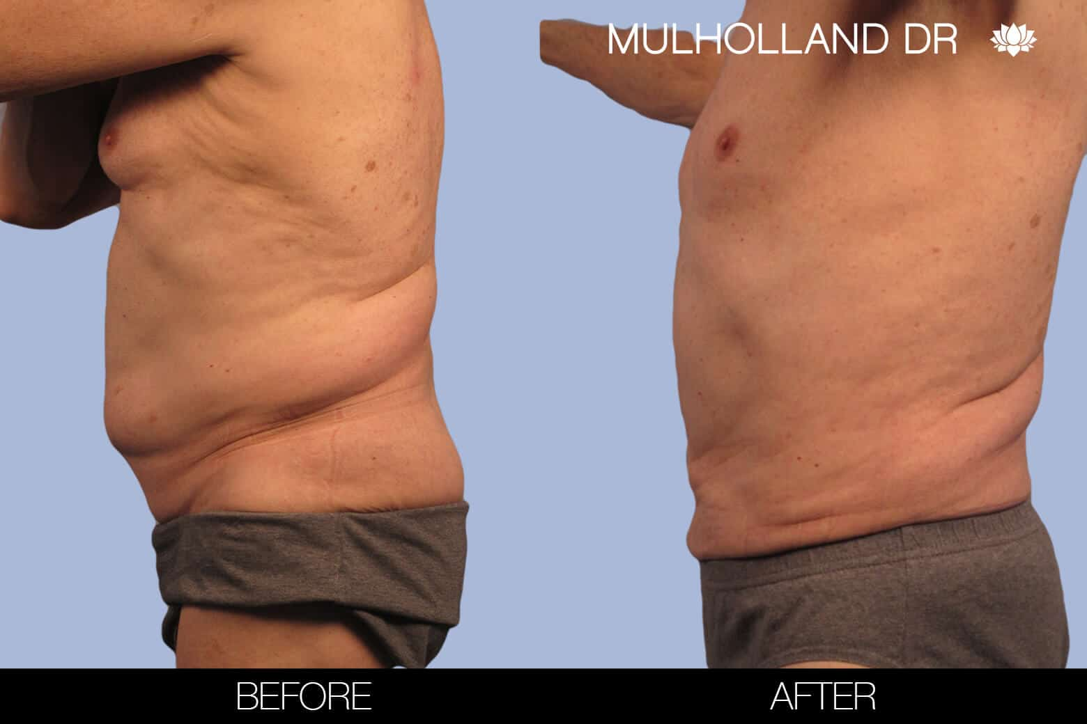 Male Tummy Tuck (Belt Lipectomy) - Before and After Gallery – Photo 31
