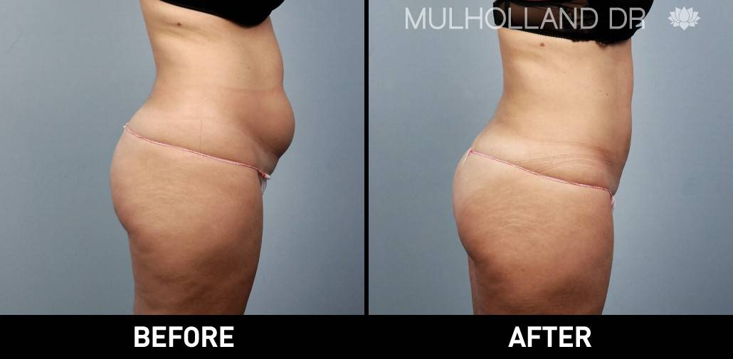 Tumescent Liposuction - Before and After Gallery – Photo 23