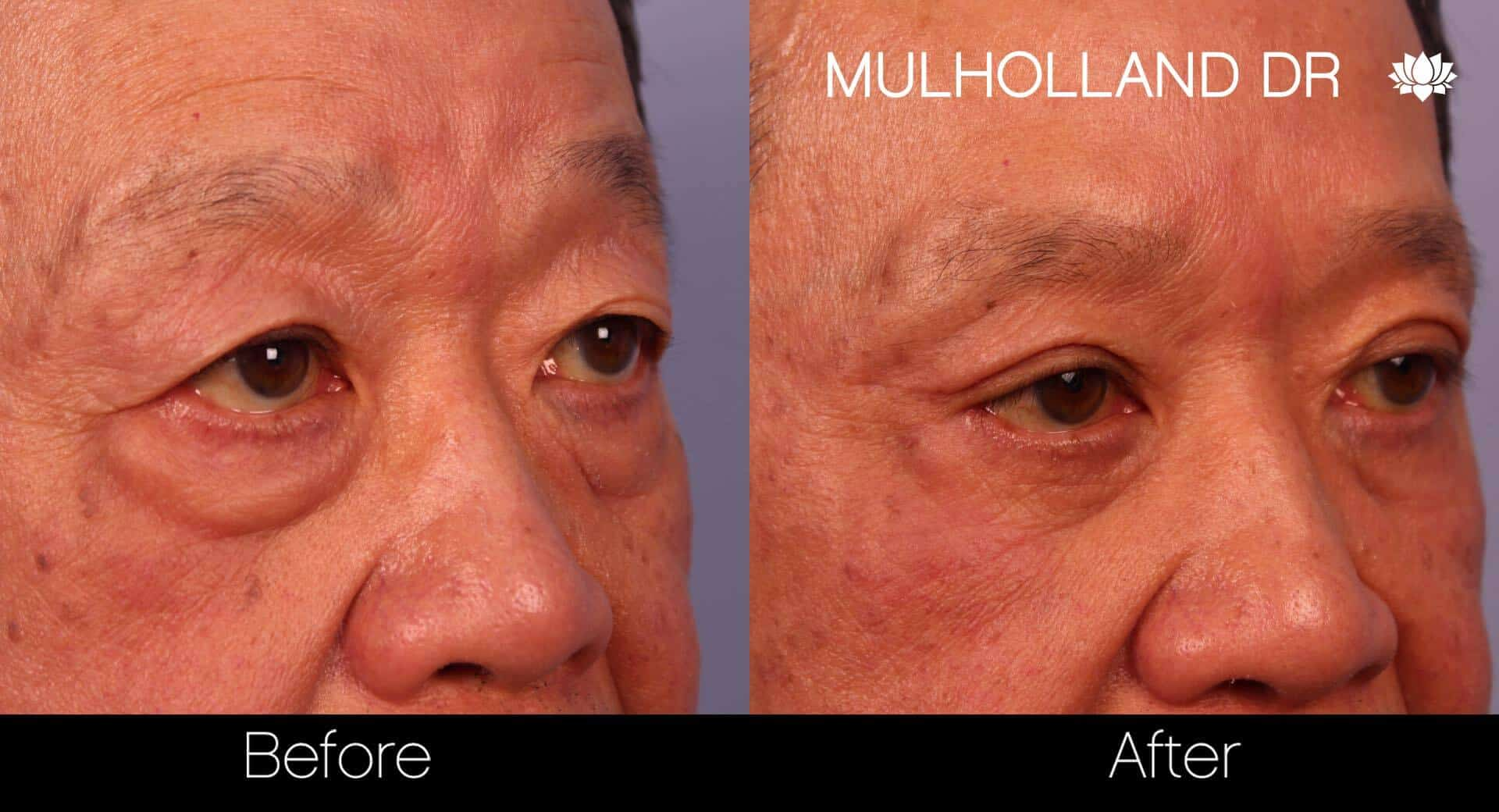 Asian Blepharoplasty - Before and After Gallery – Photo 22