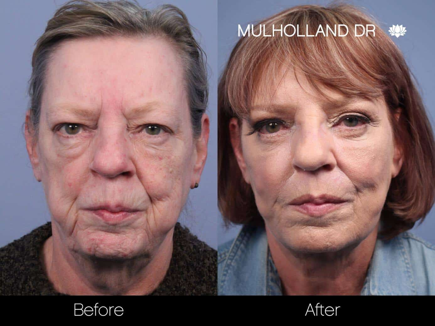 Facial Fat Transfer - Before and After Gallery – Photo 22