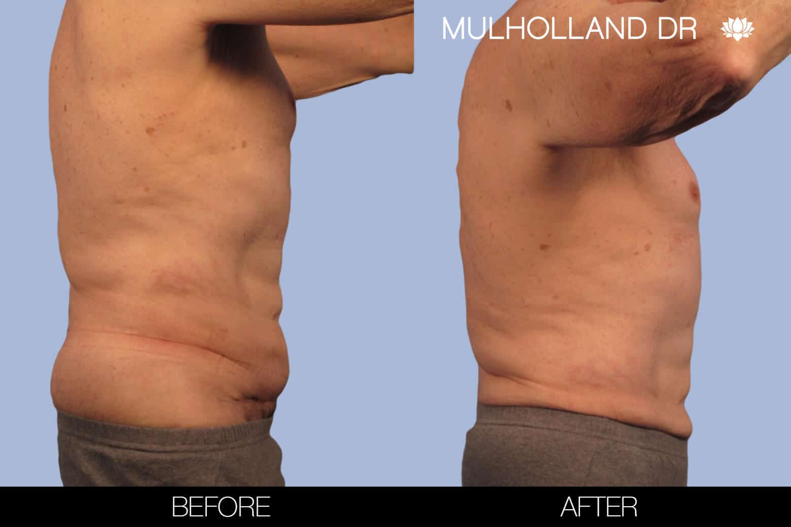 Male Tummy Tuck (Belt Lipectomy) - Before and After Gallery – Photo 32