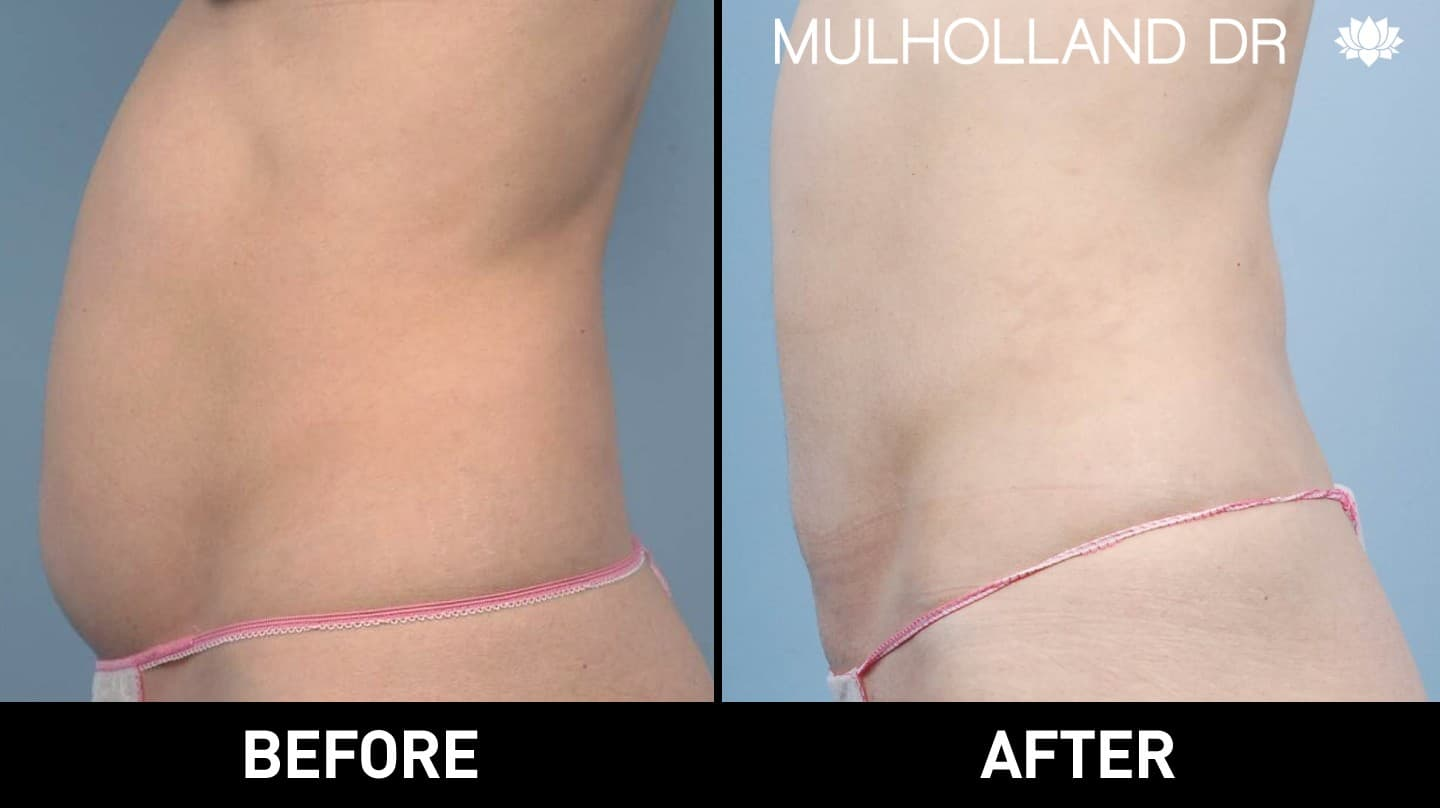 Tumescent Liposuction - Before and After Gallery – Photo 24
