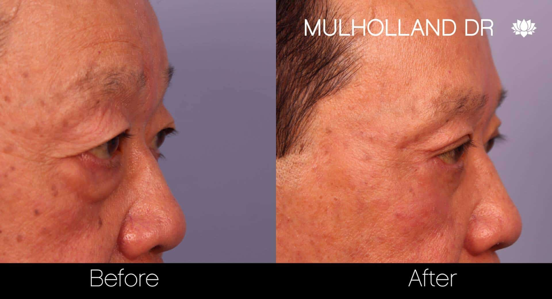 Asian Blepharoplasty - Before and After Gallery – Photo 23