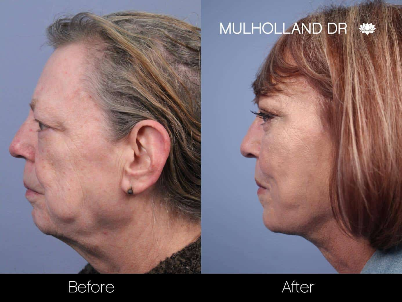 Facial Fat Transfer - Before and After Gallery – Photo 24
