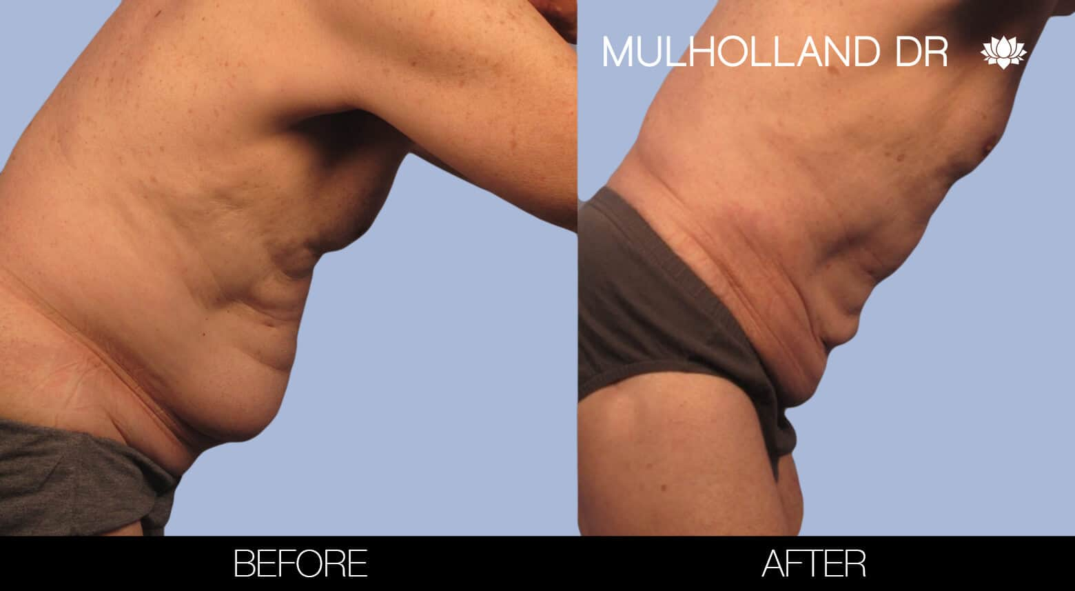 Male Tummy Tuck (Belt Lipectomy) - Before and After Gallery – Photo 33