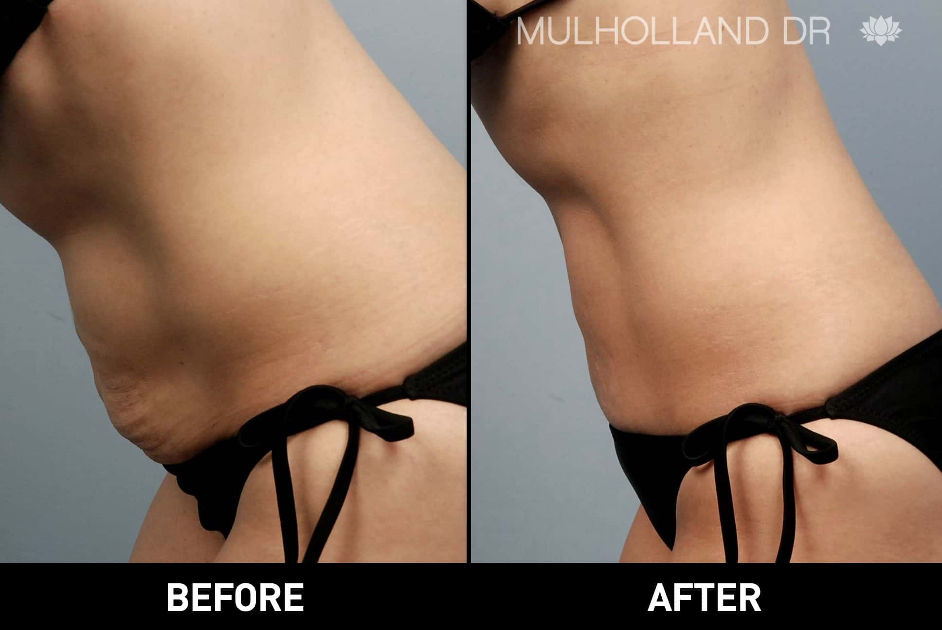 Tumescent Liposuction - Before and After Gallery – Photo 25
