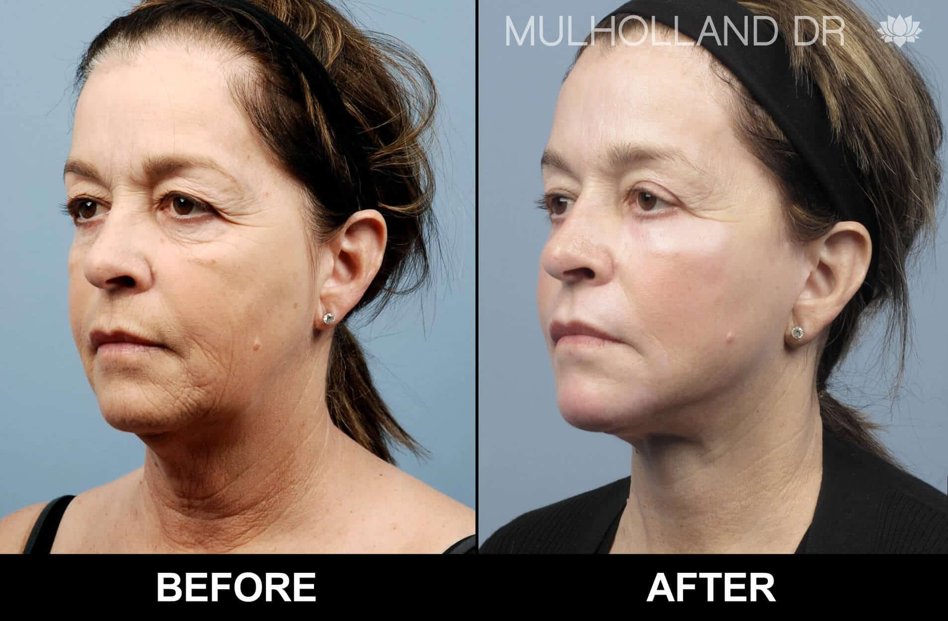 Facial Fat Transfer - Before and After Gallery – Photo 25