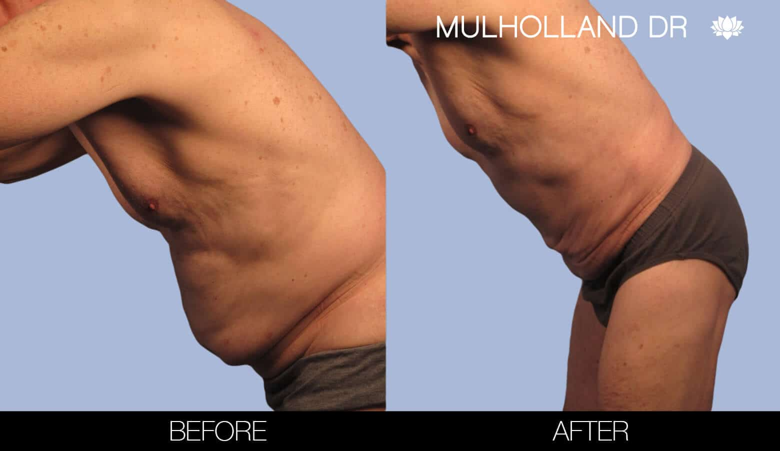 Male Tummy Tuck (Belt Lipectomy) - Before and After Gallery – Photo 34