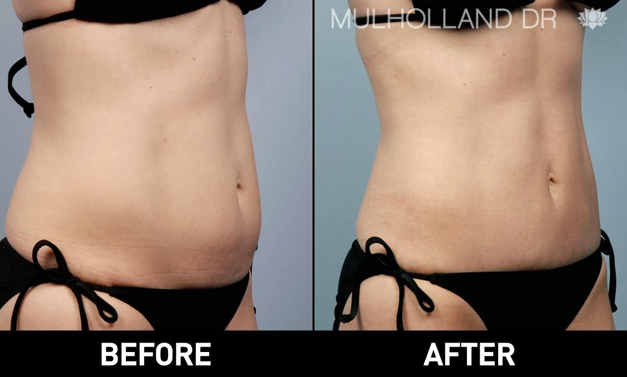 Tumescent Liposuction - Before and After Gallery – Photo 26