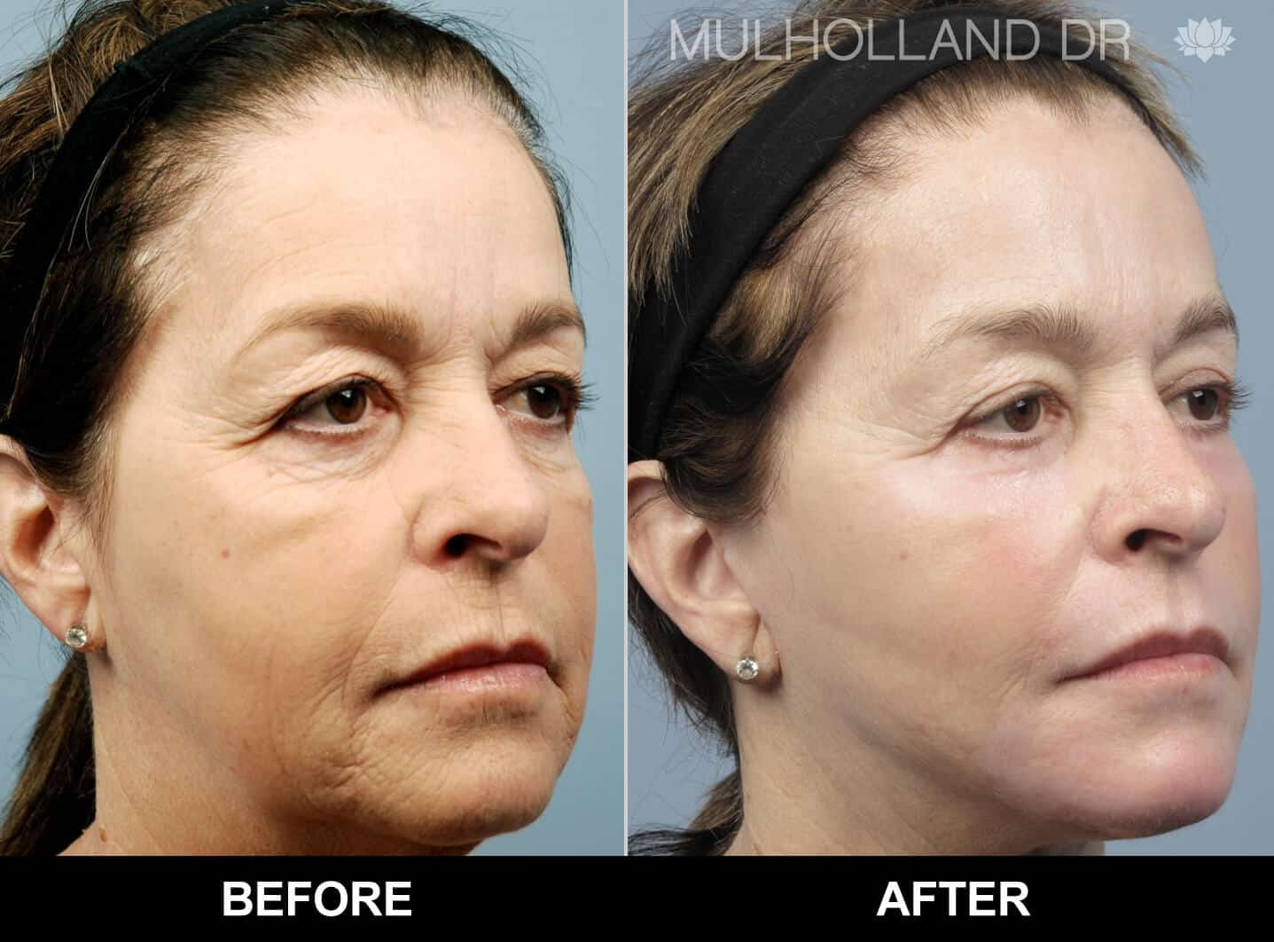 Facial Fat Transfer - Before and After Gallery – Photo 26