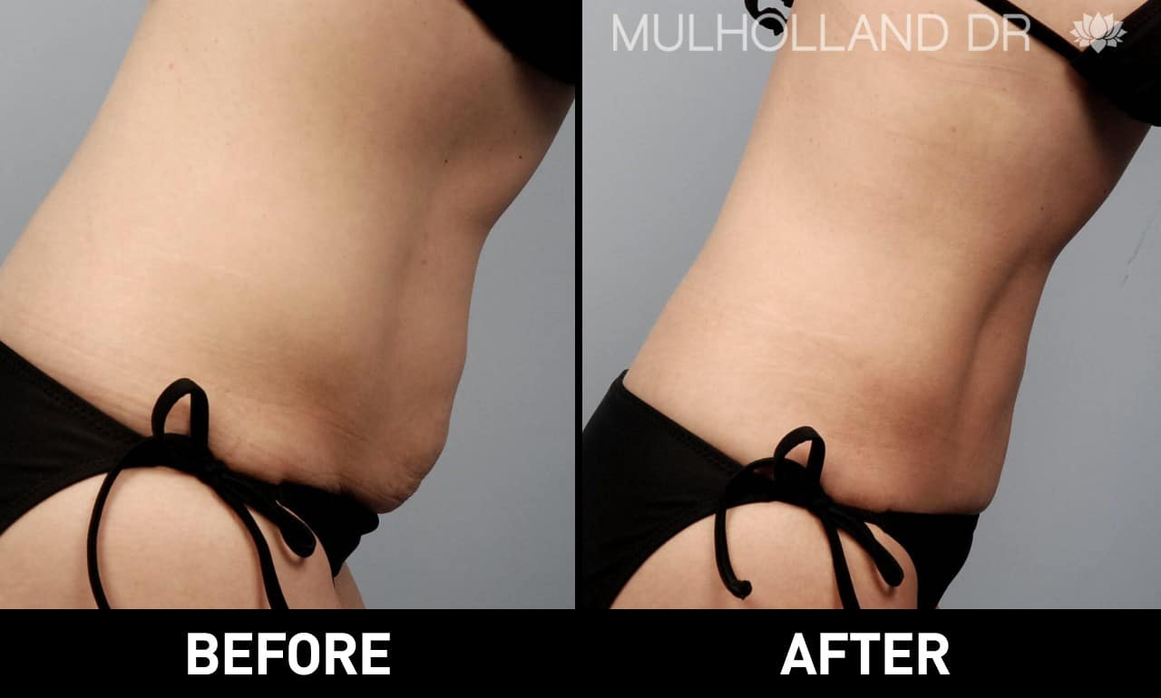 Tumescent Liposuction - Before and After Gallery – Photo 27