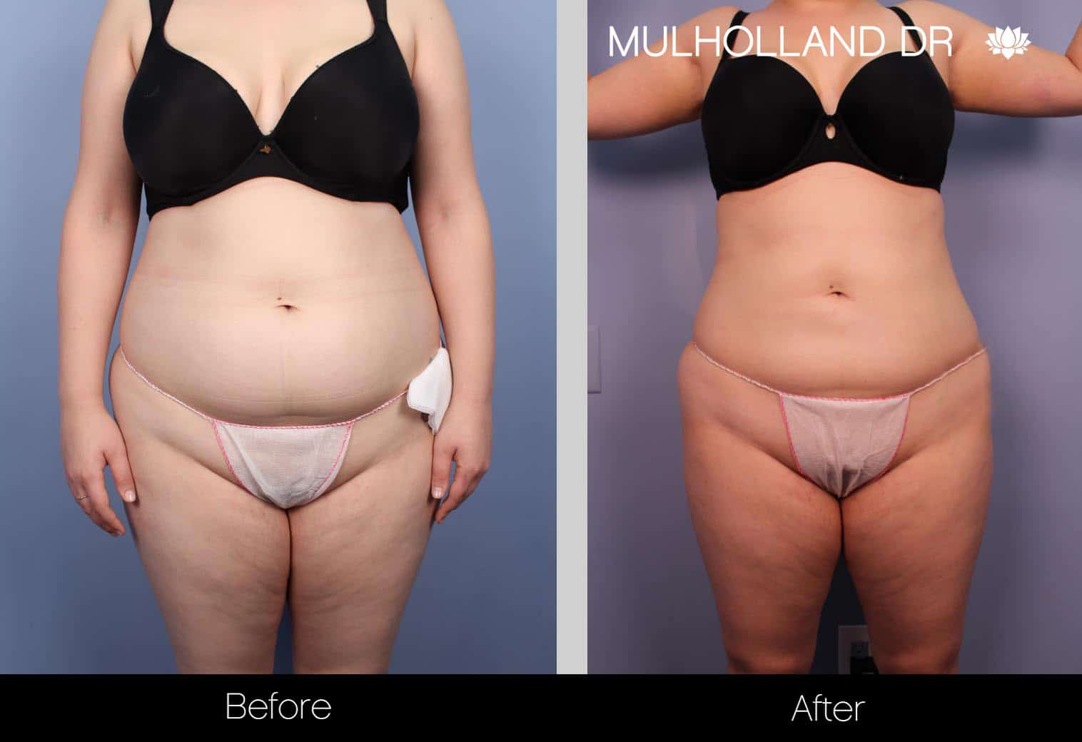 Tumescent Liposuction - Before and After Gallery – Photo 28