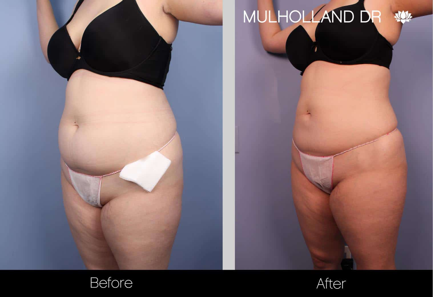 Tumescent Liposuction - Before and After Gallery – Photo 29