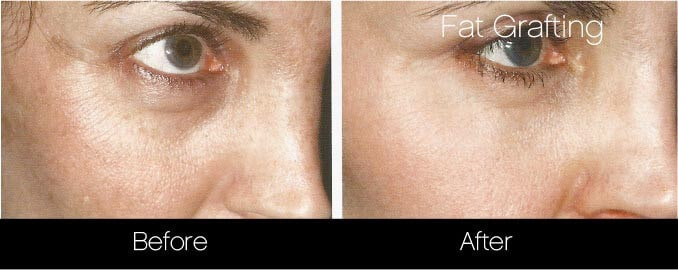 Facial Fat Transfer - Before and After Gallery – Photo 27