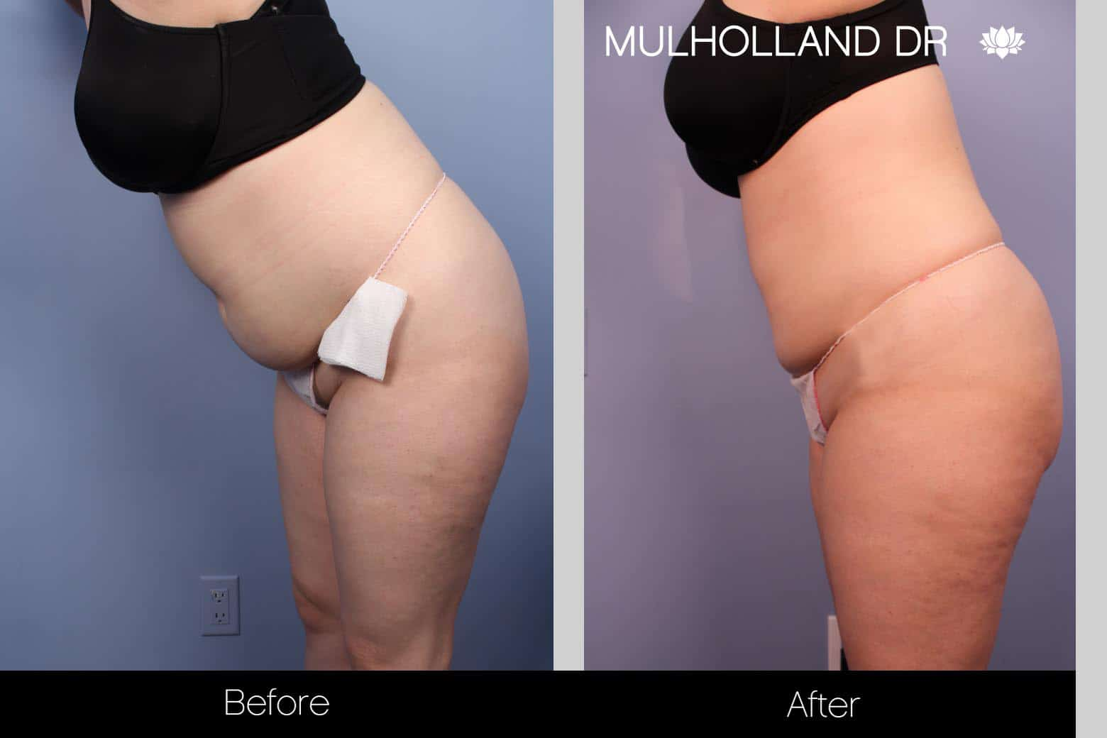 Tumescent Liposuction - Before and After Gallery – Photo 30
