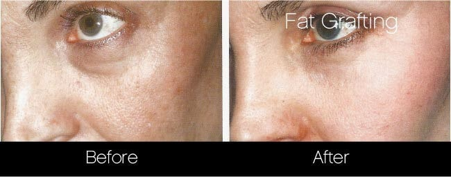Facial Fat Transfer - Before and After Gallery – Photo 28