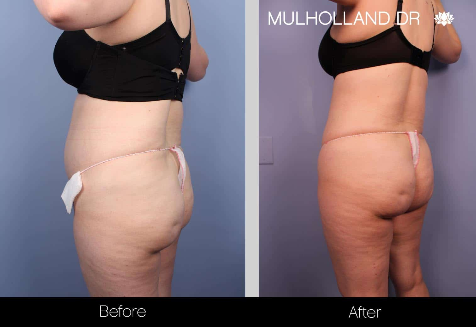 Tumescent Liposuction - Before and After Gallery – Photo 31