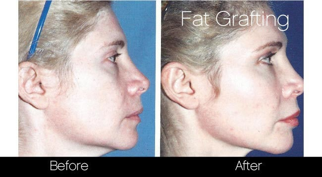 Facial Fat Transfer - Before and After Gallery – Photo 29